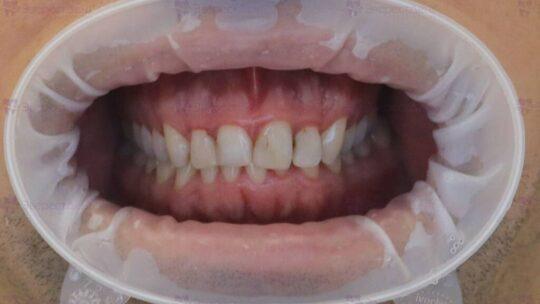 Пример зубов до установки виниров