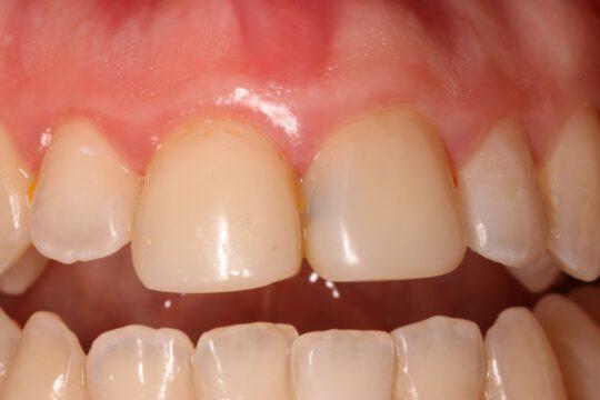 11 и 21 зубы до установки коронок из циркония