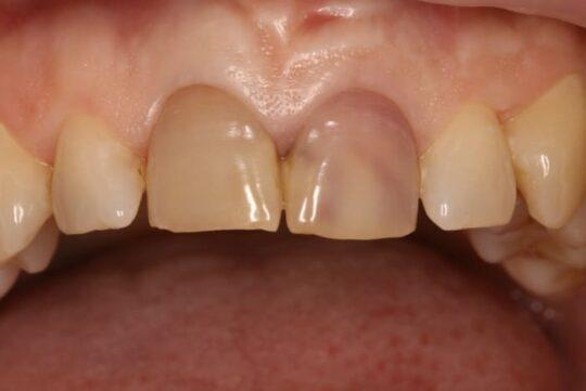 Фото мраморных зубов
