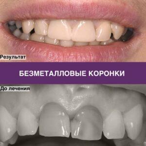 Коронки из циркония на 11 и 21 зубы