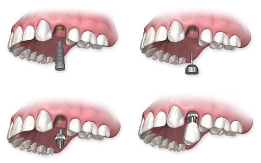 Пример установки зубного импланта в верхнюю челюсть