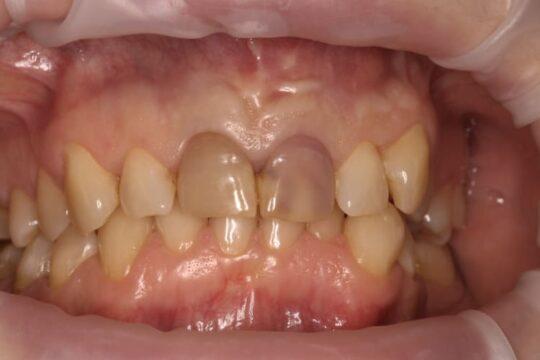 Пример зубов до установки безметалловой коронки