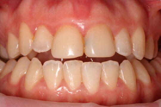 Зубы до безметалловых коронок из циркония
