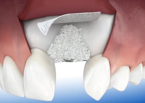 Костная пластика зубов - фото