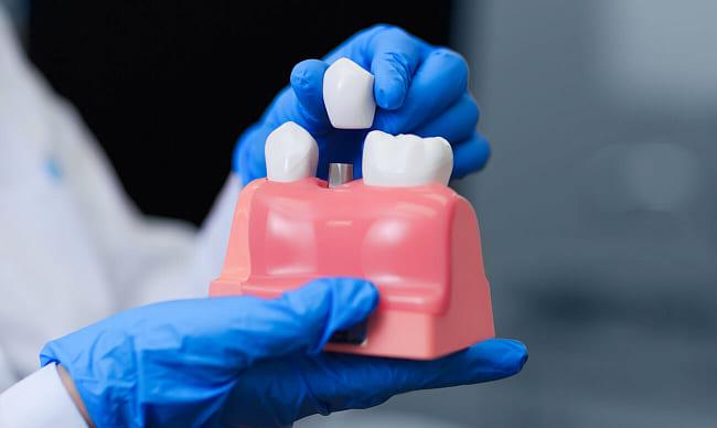 Уход после зубной имплантации