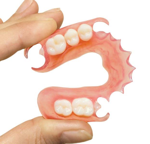 Пример нейлонового протеза для челюсти