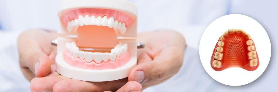 Основные правила ухода за съемными зубными протезами