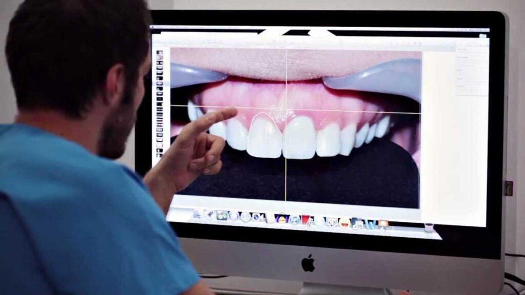 моделирование улыбки DSD