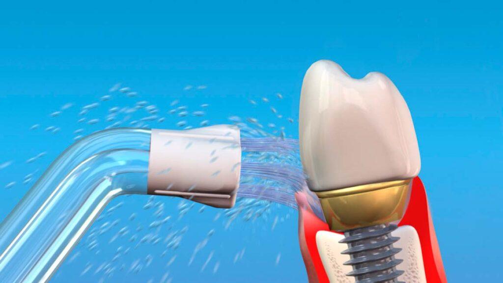 Как производится профессиональная чистка имплантов