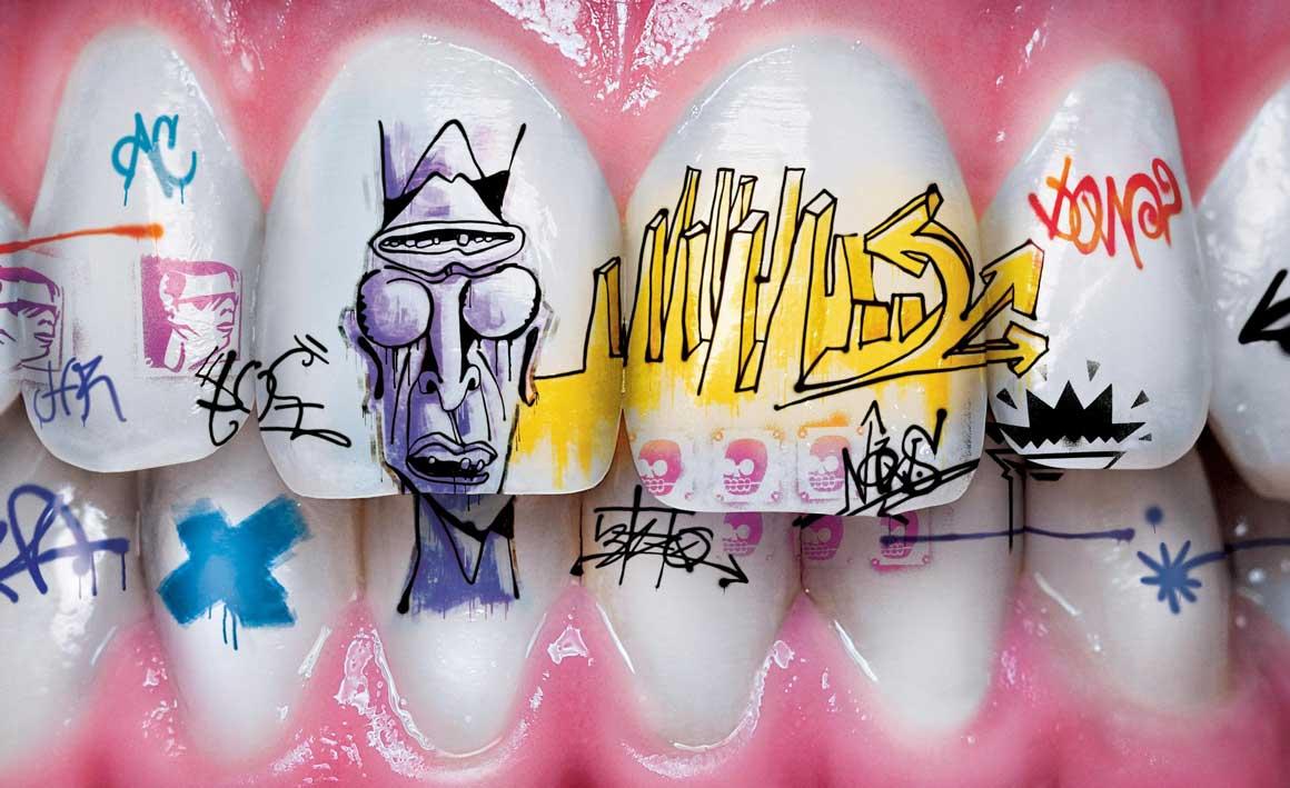 Наклейки на зубы