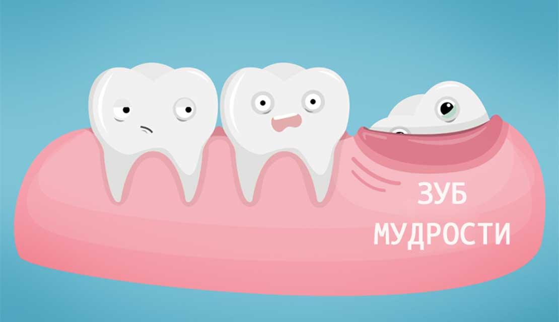 Почему зубы мудрости растут не у всех