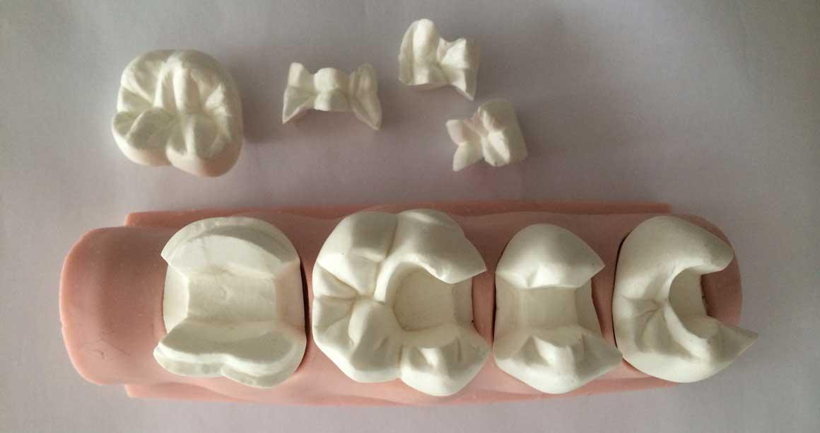 Вкладки зубные