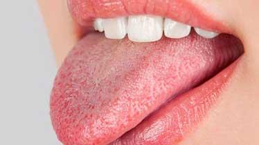 Ожоги слизистой полости рта