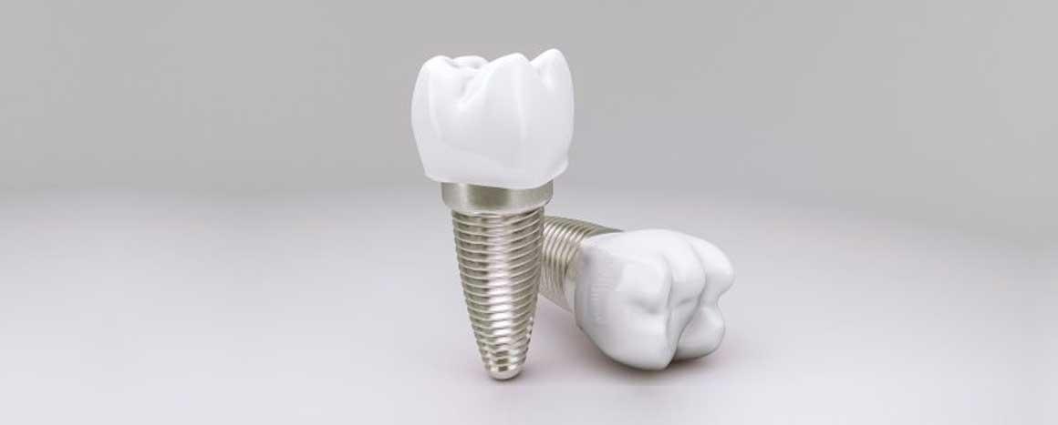 Срок службы имплантов